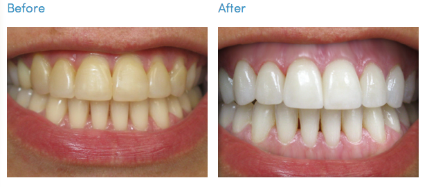 Complete Whitening Pack