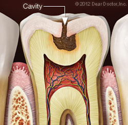 Cavity on the Tooth