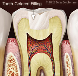 Tooth-colored Filling