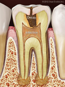 tooth-decay-infection