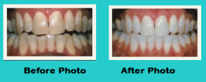 Teeth Whitening Zoom Whitening Smile Care Family Dental