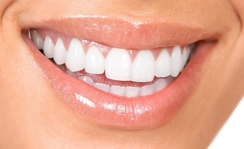 Teeth Whitening Zoom Whitening Smile Care Family Dental